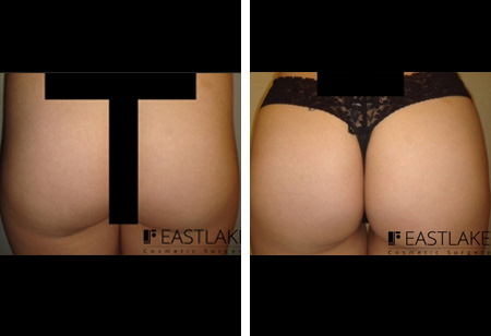 Buttock Brazilian Lift